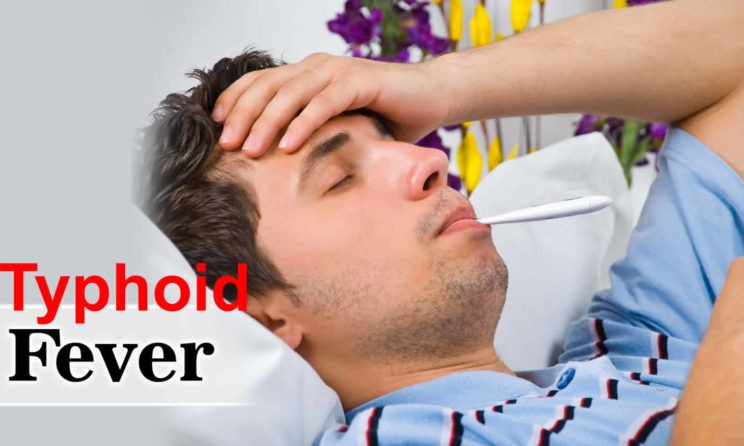 Typhoid Fever: Here Are Causes, Symptoms And Treatment
