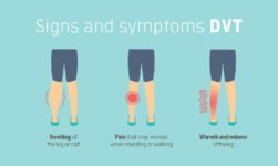 These Are The 5 Natural Ways To Deal With DVT (Deep Vein Thrombosis)